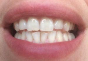 Dents_blanches_après