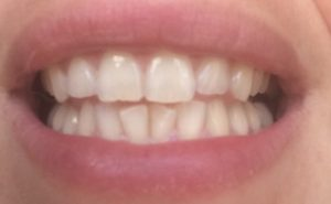 Dents_blanches_avant